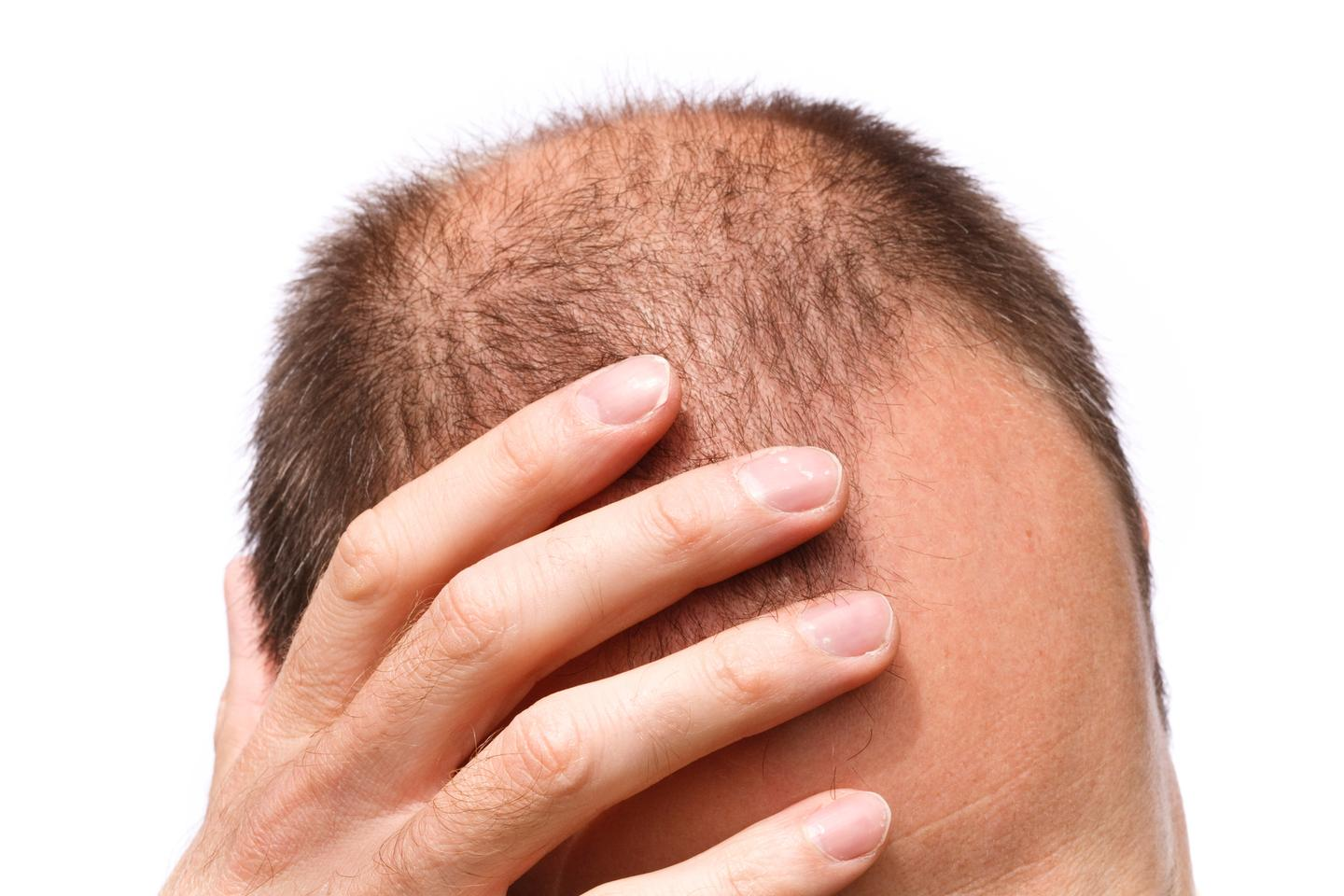 Scientists have uncovered new evidence linking hair loss and stress