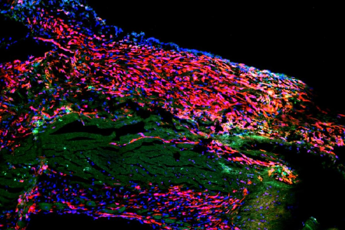 The heart wall of a mouse after a heart attack. Scar tissue is visible in red, while the dark green areas are dead heart muscle cells