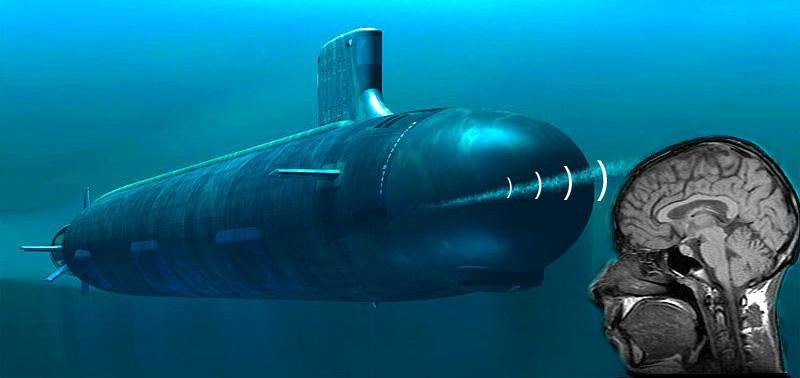 Blood flow monitored using submarine-like sonar technology