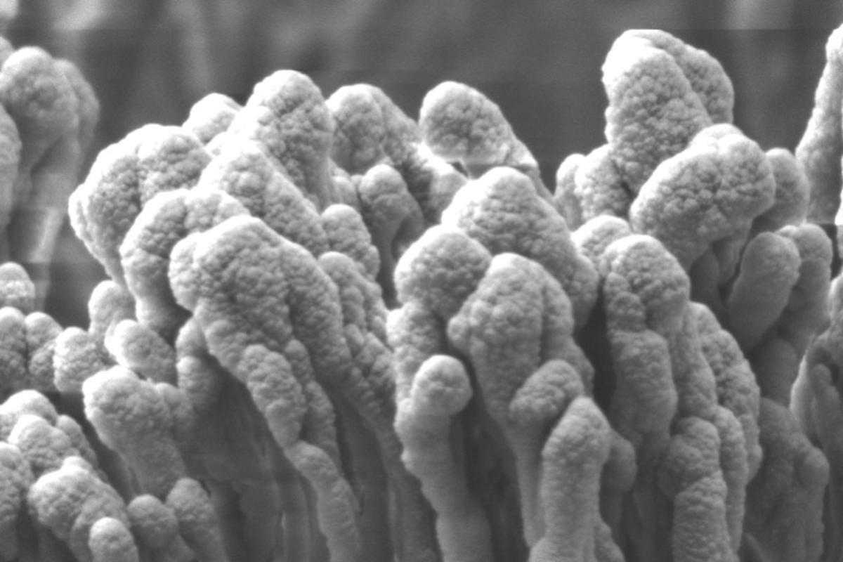 A microscope image of the nano-enoki PET