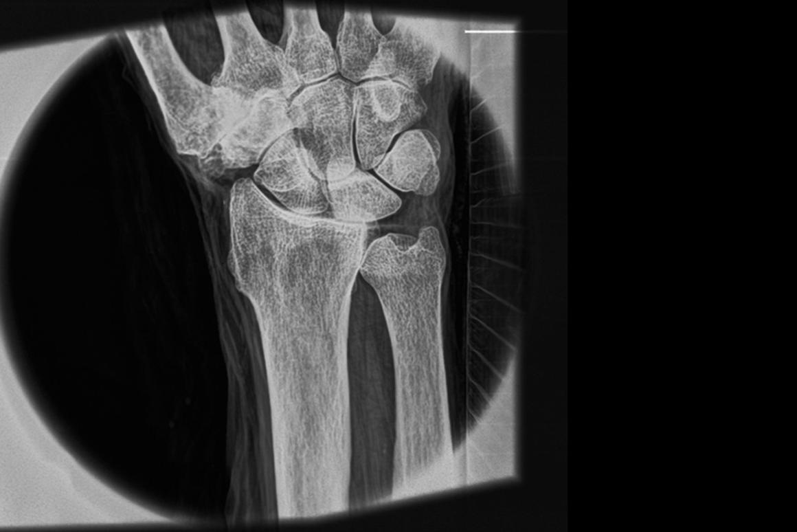 An X-ray of a human wrist demonstrates the system's ability to reveal soft-tissue structures and very fine detail (Photo: MIT)