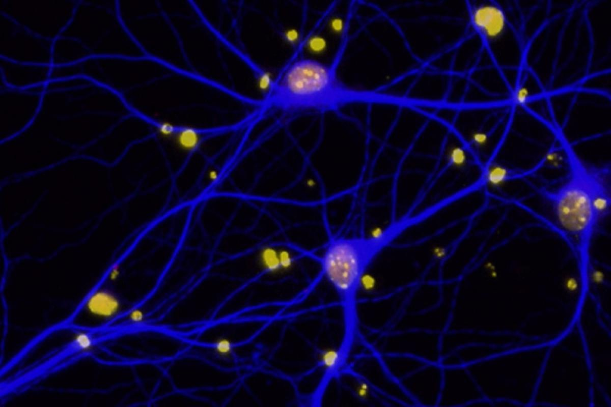 The study found that amyloid-beta plaques in the brain reduce levels on the protein BRCA1 (red) in neurons (blue)