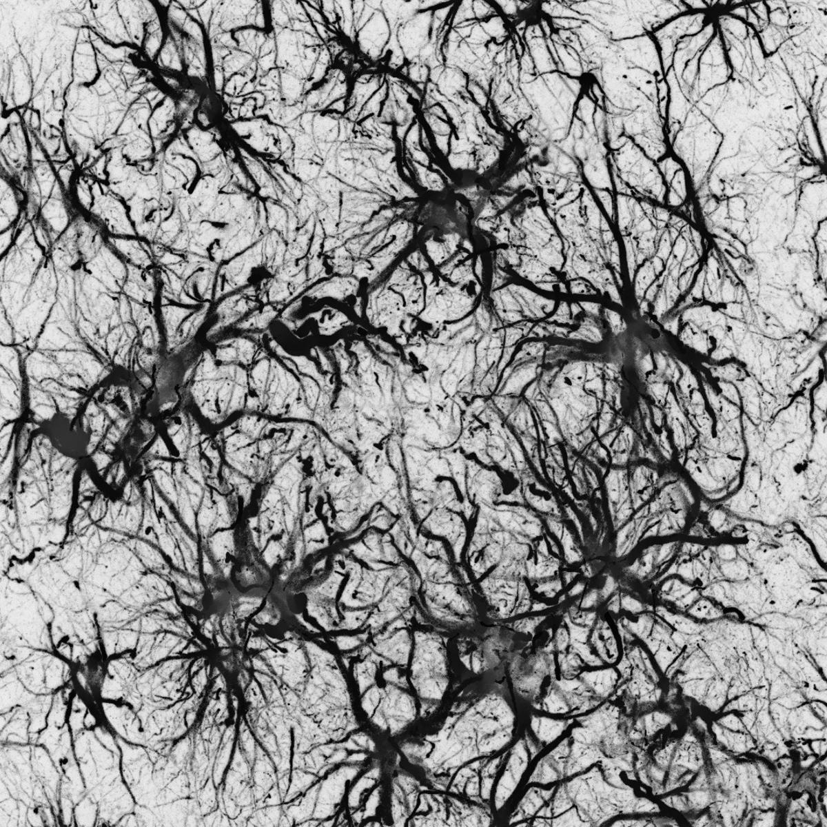 The cortex of an animal model of Alzheimer's disease
