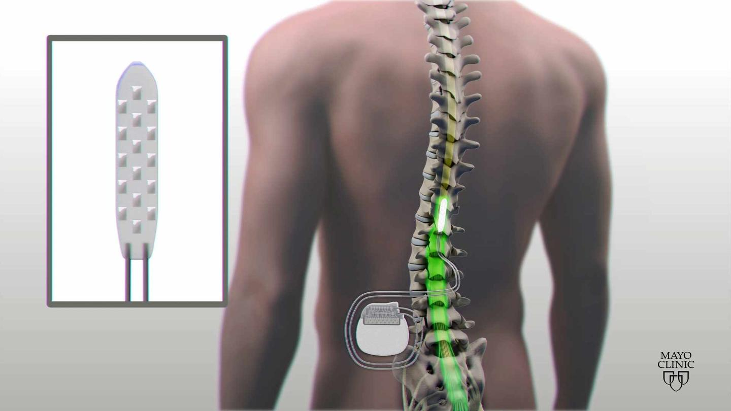 An electrode implanted just below a spinal cord injury has allowed a patient to intentionally regain control of their legs in a new study from the Mayo Clinic