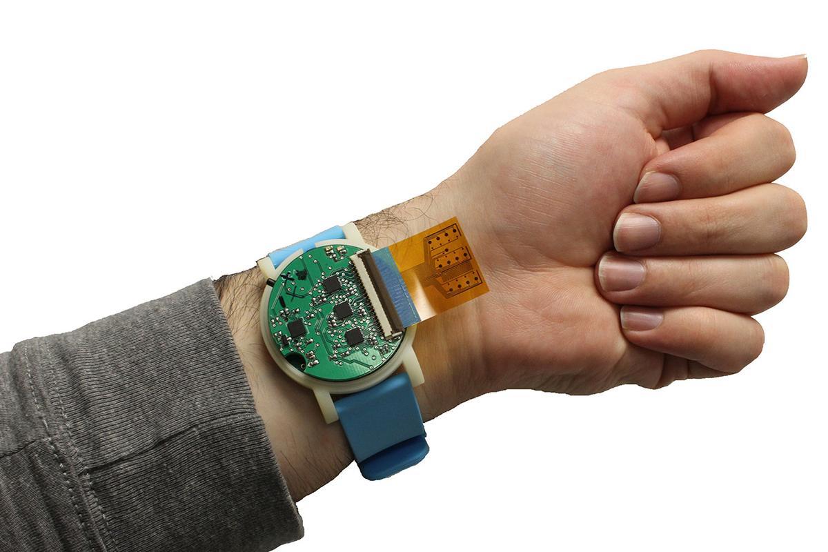 A sweat-sensing device developed at North Carolina State University