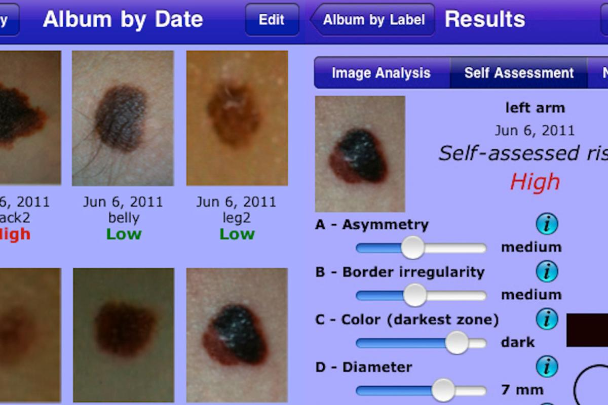MelApp is an image-based risk assessment mobile app that assists in the early detection of melanoma