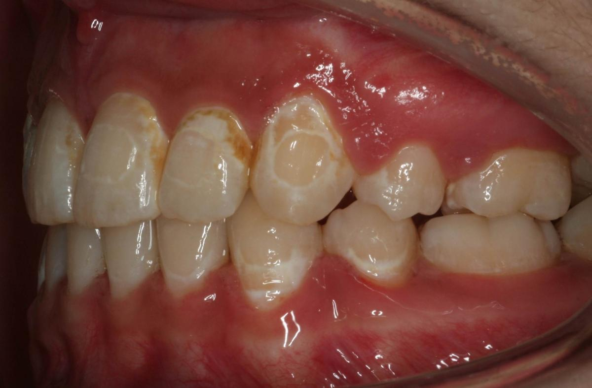 White spot lesions on the teeth of a person who previously wore braces