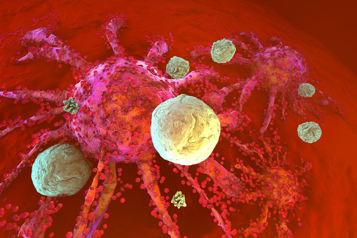 Researchers have used ultrasound to focus cancer immunotherapy on tumors, to reduce off-target side effects