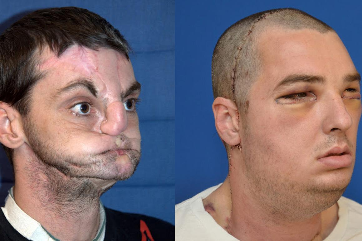 Remarkable transformation - before and after shots of the face transplant recipient (Photo: University of Maryland Medical Center)
