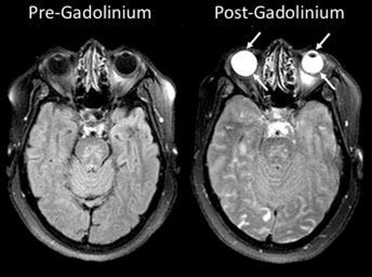 MRI scan images showing stroke patients before and after the injection of gadolinium, which has leaked into the eyes