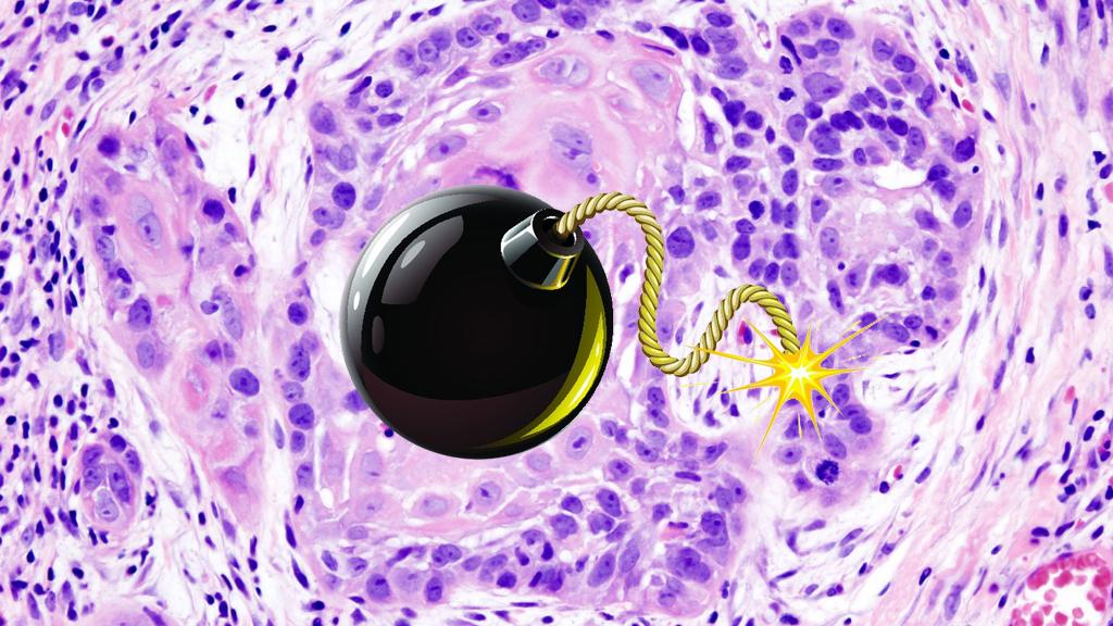 Researchers liken their breakthrough to a cluster bomb for cancer (Image: KGH and Shutterstock)