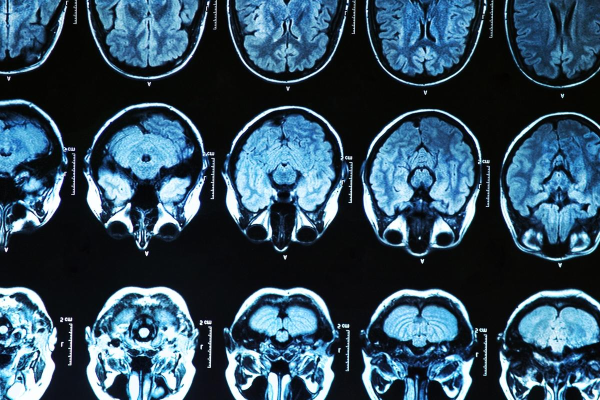 A ground-breaking new treatment that has proven safe in phase 1/2a human trials could potentially be adapted to treat a variety of other neurodegenerative diseases
