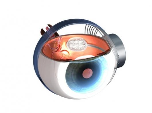 Second Sight's Argus II retinal implant