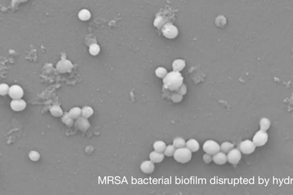 Only a few bacteria are left over, after the hydrogel was used to destroy a solid bacterial biofilm