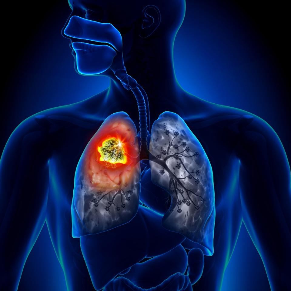 """Google describes the early results of the AI it developed to detect lung cancer as """"encouraging"""""""
