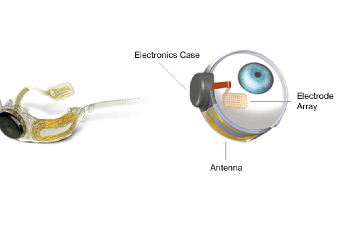 Argus II consists of a tiny video camera mounted in glasses that is wirelessly linked to a receiver and microelectrode array implanted onto the patient's retina