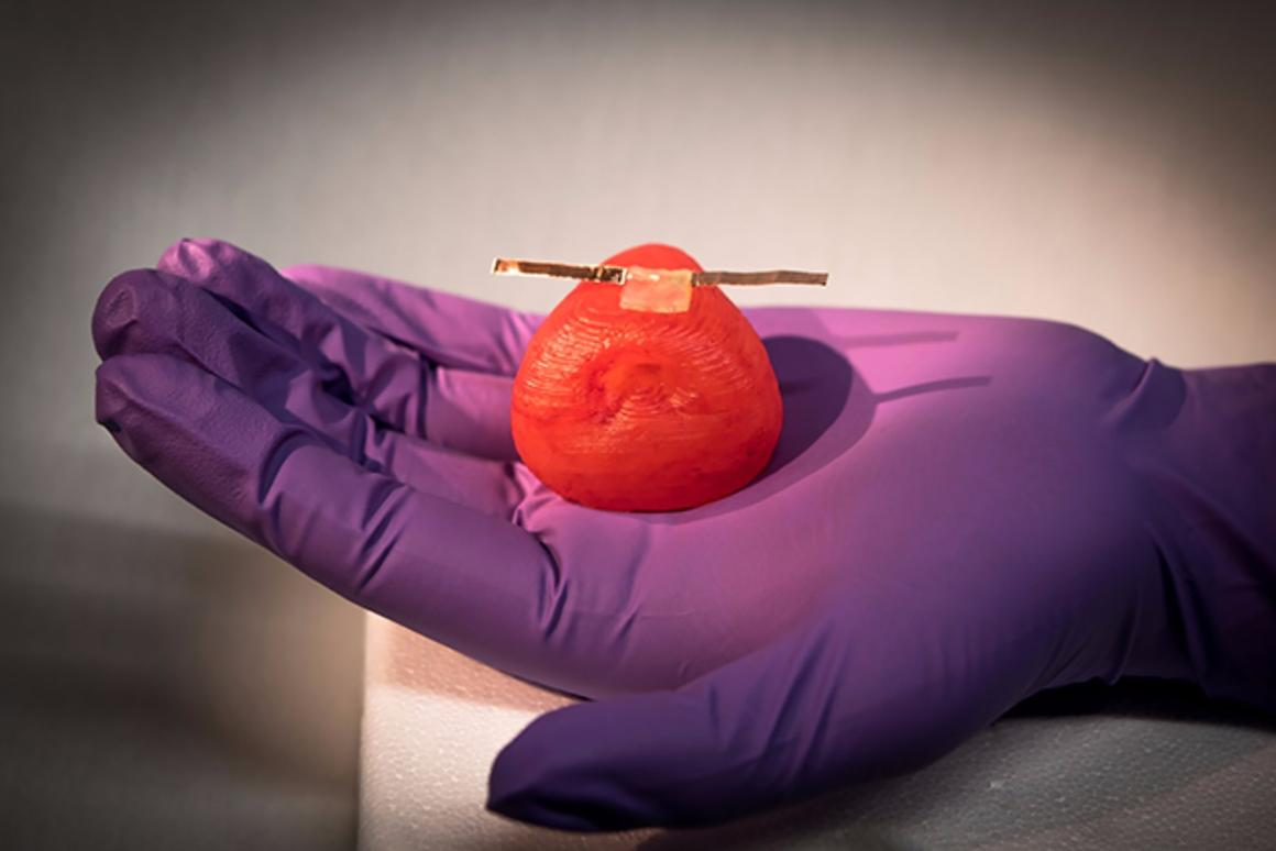 An artificial prostate fittedwith a softsensor