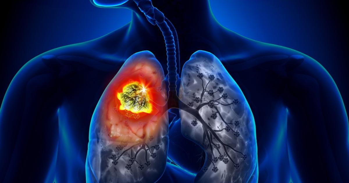 Google's AI for lung cancer diagnosis proves more accurate than radiologists in early trial
