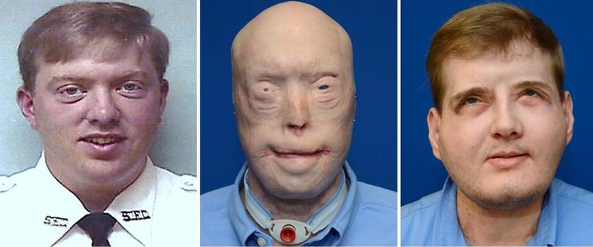 Face transplant gives ex-firefighter his life back