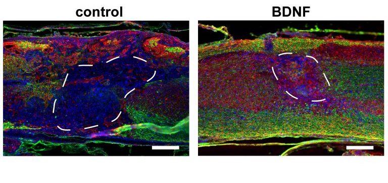 Eight weeks after injection, the injury sites are recovering at different rates. Left: mice injected with a control scaffold. Right: mice injected with a scaffold containing gene therapy vectors, improving the numbers of axons (red) and myelinating glial cells (green)
