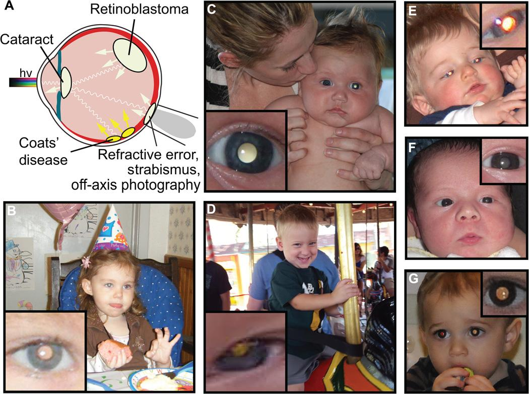 Examples of pathologic and physiologic leukocoria detected in childhood photographs by the prototype CRADLE application