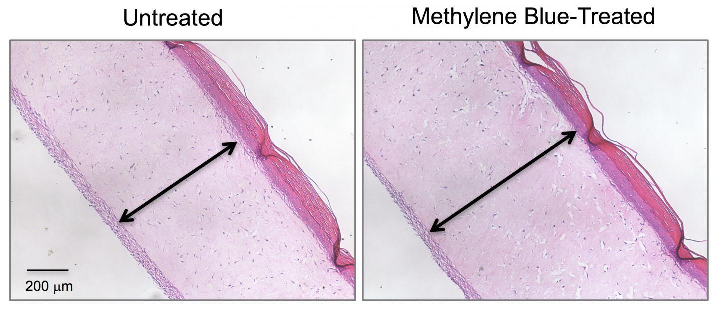 The artificial skin treated with methylene blue on the right shows a thicker epidermis than the untreated sample on the left
