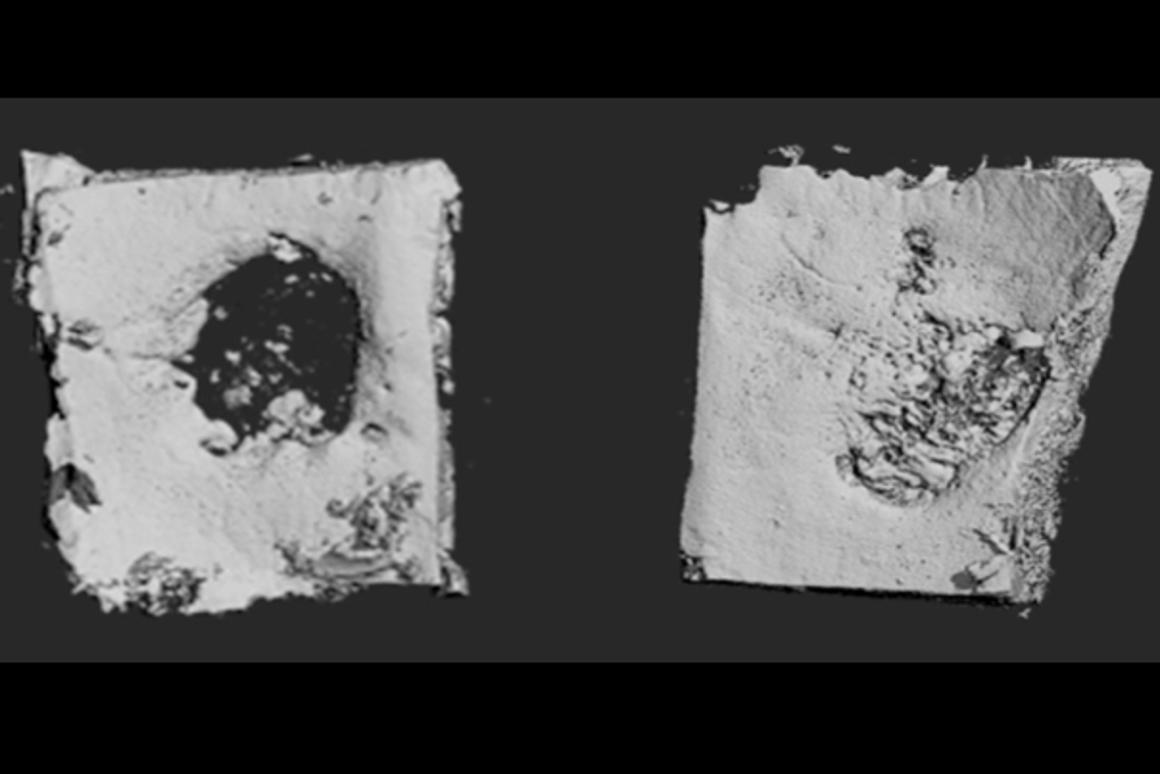 Scientists have created a collagen-based patch that uses synthetic DNA to stimulate bone growth