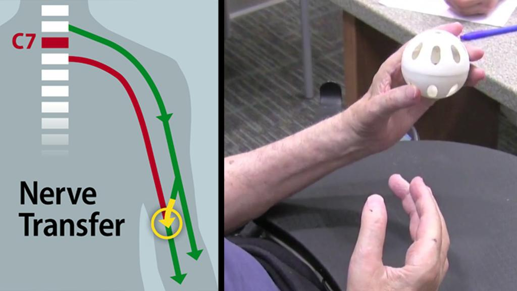Surgeons have restored some hand function to a quadriplegic patient by rerouting nerves in the patient's upper arm to bypass the block at their C7 spinal cord injury