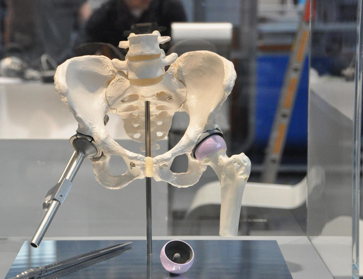 Fraunhofer's experimental new artificial hip (right)