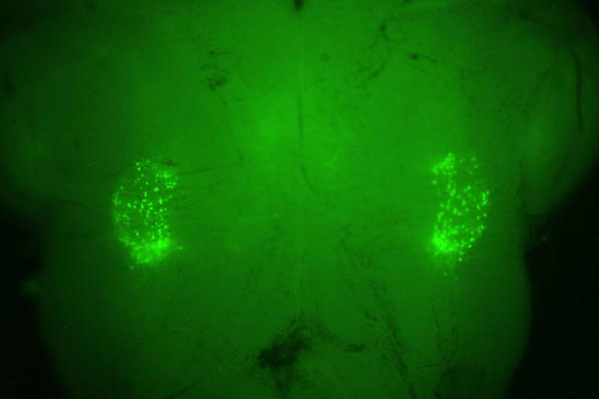 A fluorescent-green marker on each side of the brain stem illuminates the two networks of 200 neurons that control the sighing reflex