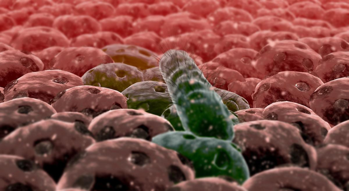 Researchers have studied how theE. coli bacteriumchanges its gene expression when it latches onto cells in the intestinal wall, and begins to attack the host