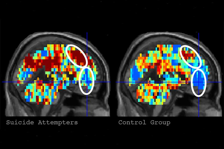 Using fMRI the researcher's successfully identified those subjects with suicidal tendencies