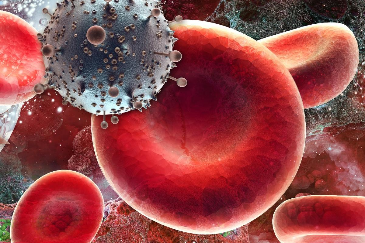 Scientists are reporting the second known case of HIV remission in the world, after stem cell treatment