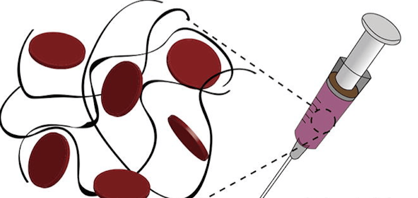 An injectable hydrogel containing nanoparticles promises to rapidly stop bleeding and enhance wound healing